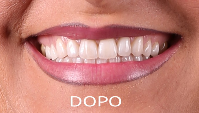 estetica-dentale-dopo