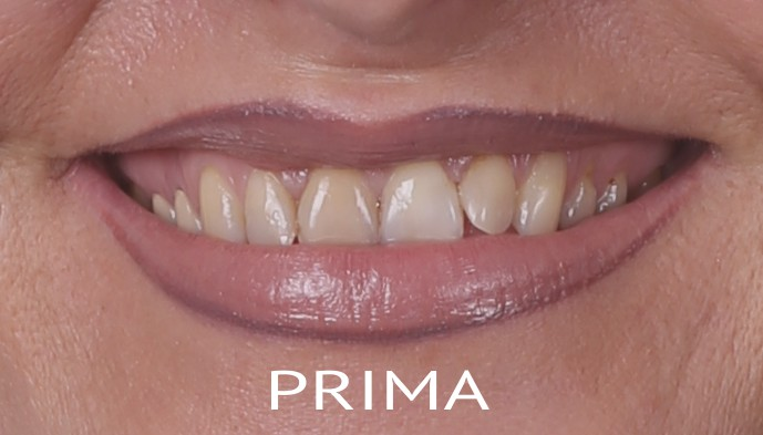 estetica-dentale-prima
