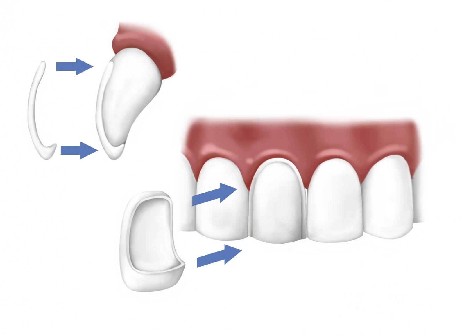 faccette-dentali-dentalarte.milano